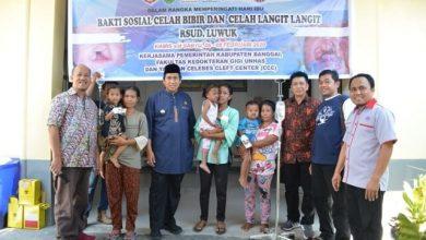 Photo of [Video] Bupati Banggai Kunjungi 48 Pasien Operasi Bibir Sumbing Di BRSUD Luwuk