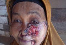 Photo of Kena Kanker Kulit, Warga Toili Butuh Bantuan
